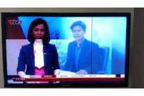 Hướng dẫn khắc phục TV Sony hình ảnh hoặc âm thanh bị méo
